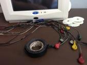 ECG cables broken.